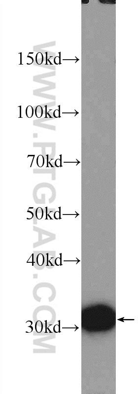VDAC1/Porin Antibody in Western Blot (WB)