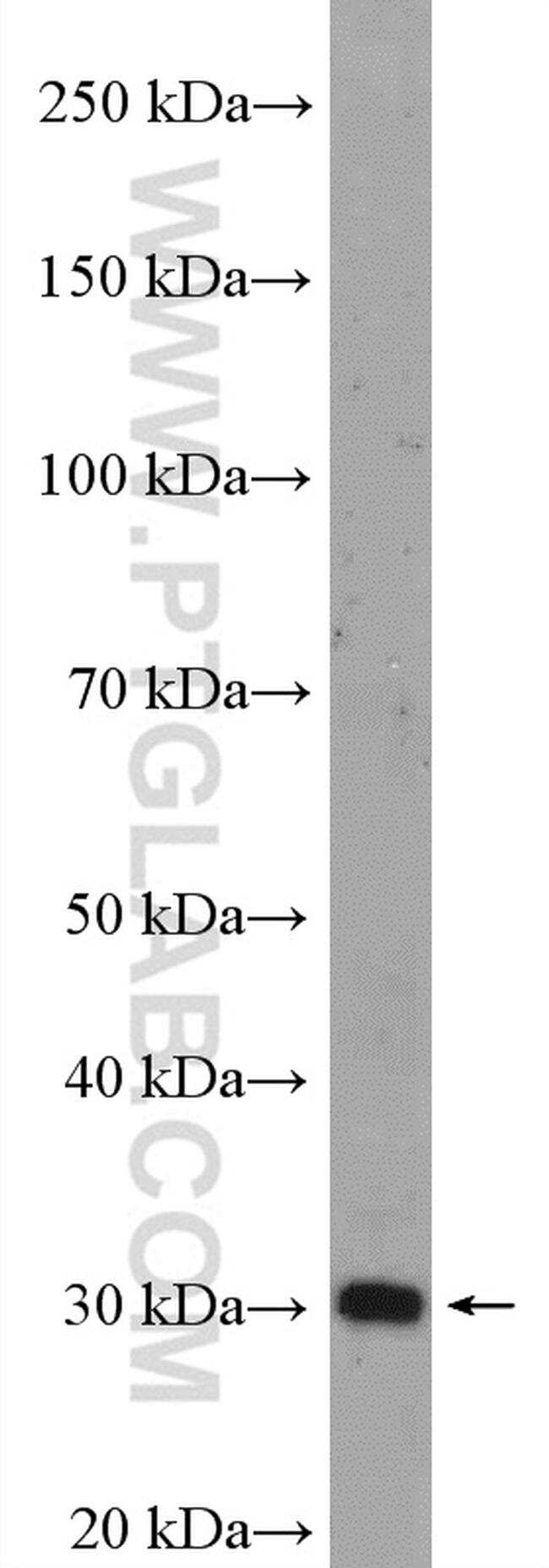 VDAC3 Antibody in Western Blot (WB)