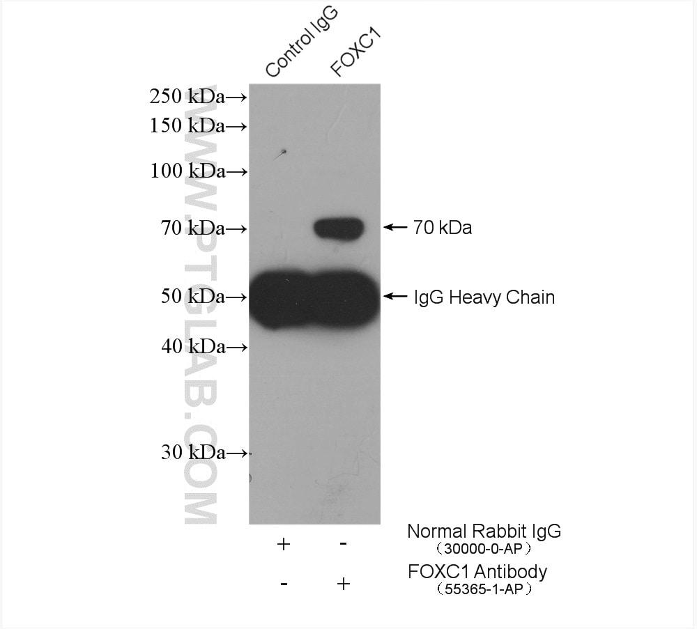 FOXC1 Antibody in Immunoprecipitation (IP)