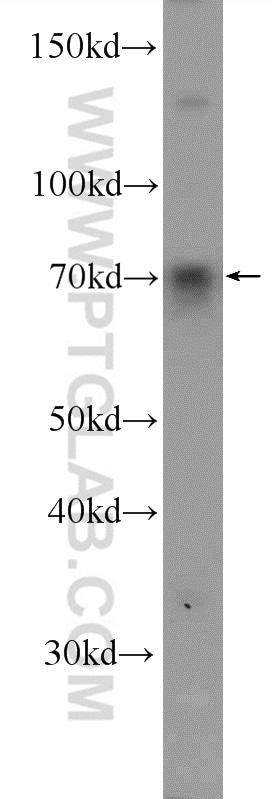 FOXC1 Antibody in Western Blot (WB)