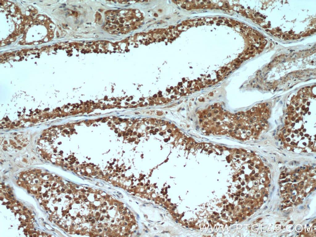 PGAP1 Antibody in Immunohistochemistry (Paraffin) (IHC (P))