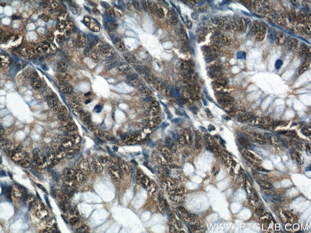 GATA5 Antibody in Immunohistochemistry (Paraffin) (IHC (P))
