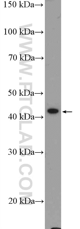 GATA5 Antibody in Western Blot (WB)