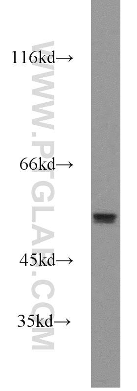 MMP20 Antibody in Western Blot (WB)