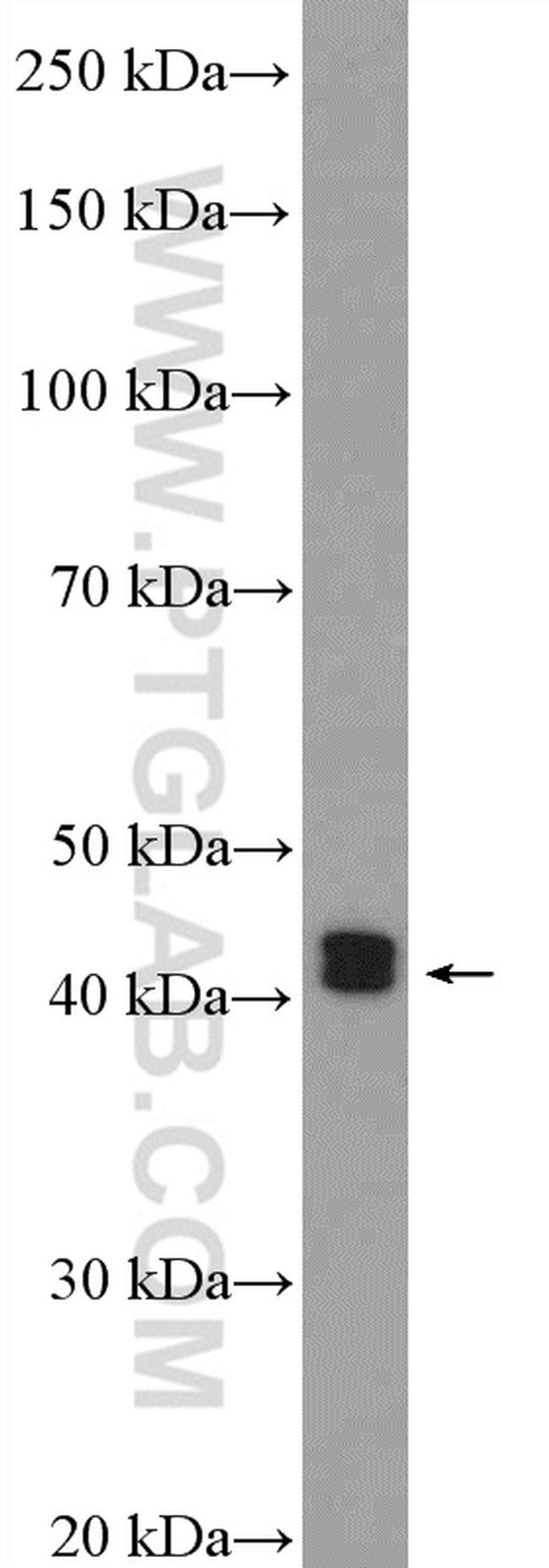 ESR2 Beta-6 Antibody in Western Blot (WB)