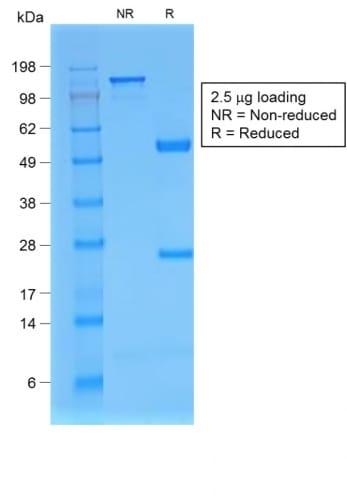 Beta-2 Microglobulin Antibody