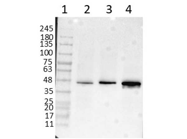 beta Amyloid Antibody in Western Blot (WB)