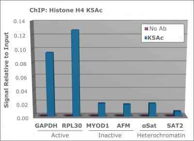 Acetyl-Histone H8 (Lys5) Antibody in ChIP assay (ChIP)