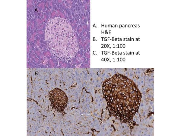 TGF beta Receptor 1 Antibody in Immunohistochemistry (IHC)