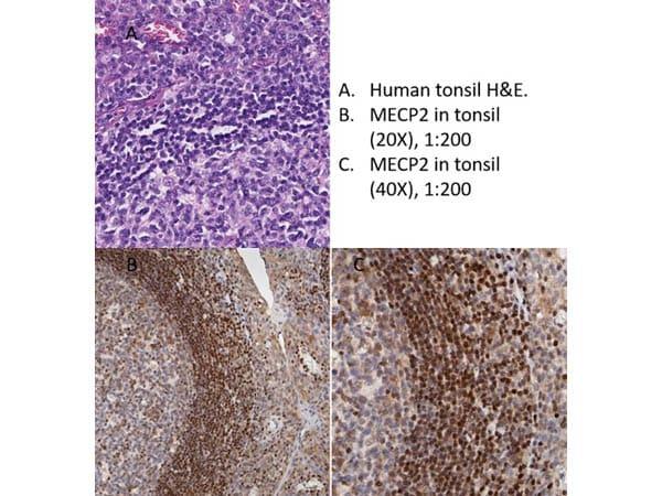 MeCP2 Antibody in Immunohistochemistry (IHC)