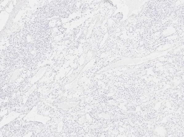 Scp3 Antibody in Immunohistochemistry (IHC)