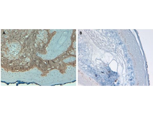 Collagen Type I Antibody in Immunohistochemistry (IHC)
