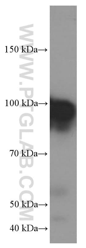 GRP94 Antibody in Western Blot (WB)