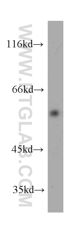 KMO Antibody in Western Blot (WB)