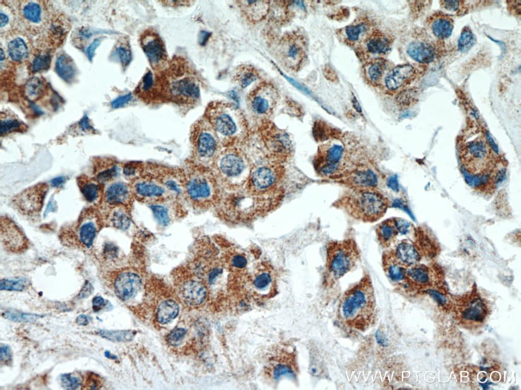 ATF4 Antibody in Immunohistochemistry (Paraffin) (IHC (P))
