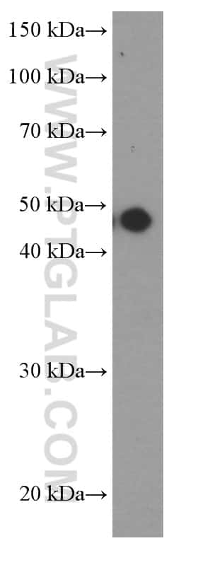 MAGEA3 Antibody in Western Blot (WB)