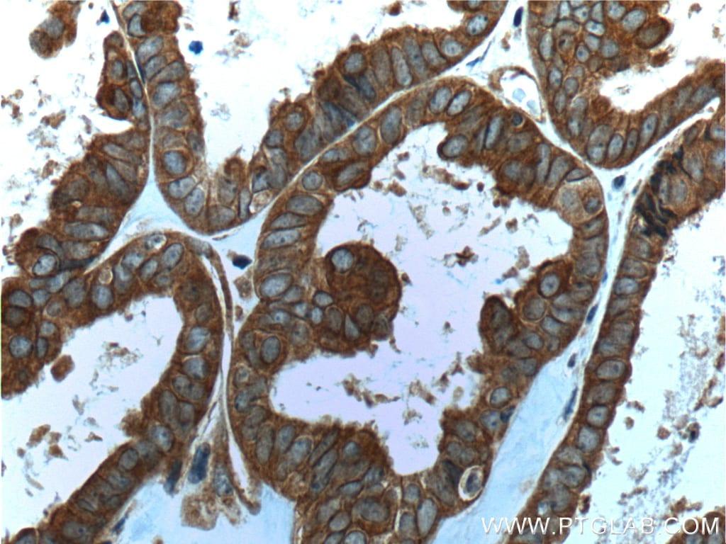 Follistatin Antibody in Immunohistochemistry (Paraffin) (IHC (P))