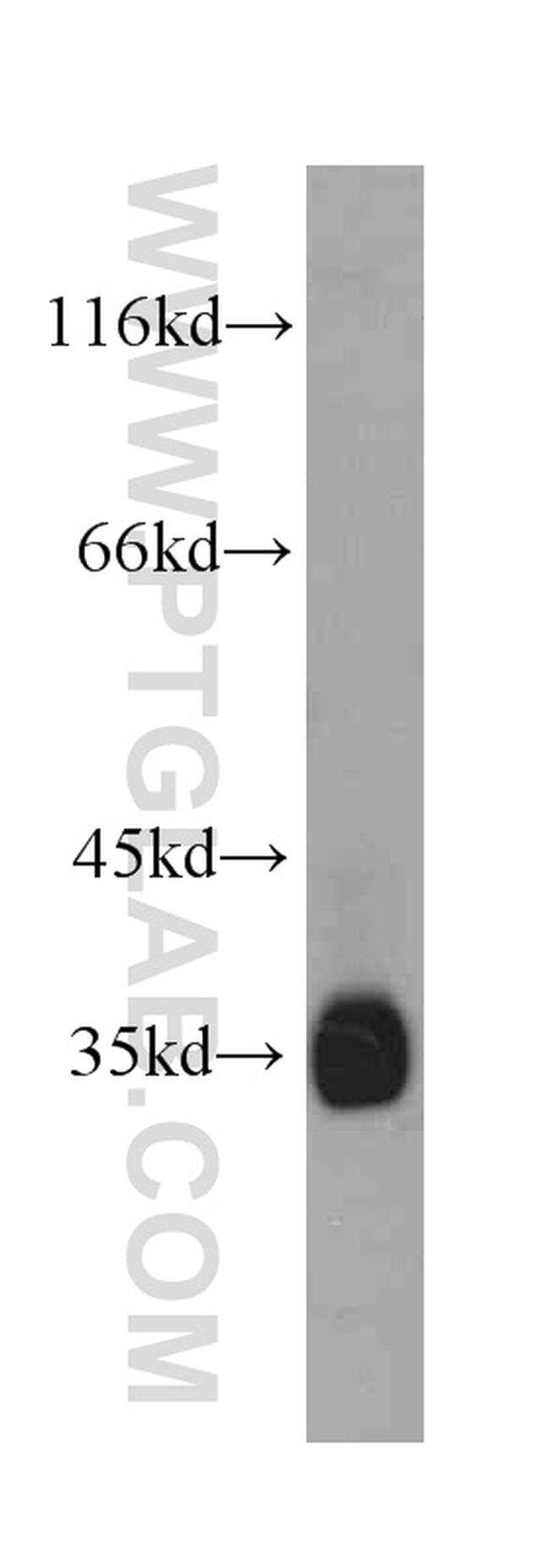 Follistatin Antibody in Western Blot (WB)