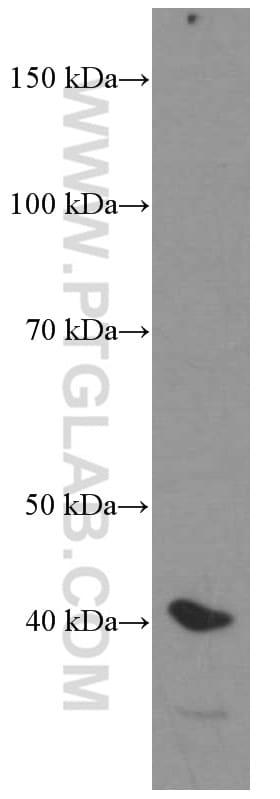 HDGF Antibody in Western Blot (WB)