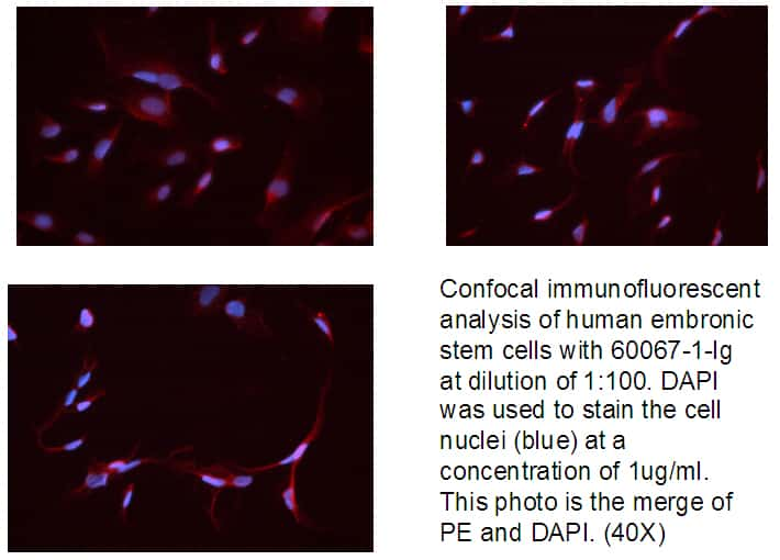 Neuropilin 1 Antibody in Immunofluorescence (IF)