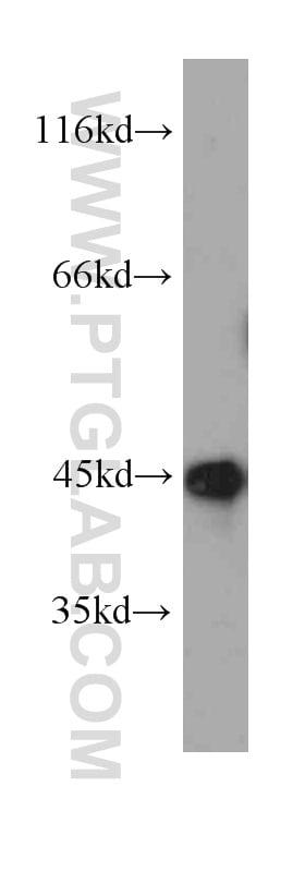 SEPT2 Antibody in Western Blot (WB)
