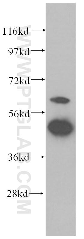 GDI2 Antibody in Western Blot (WB)