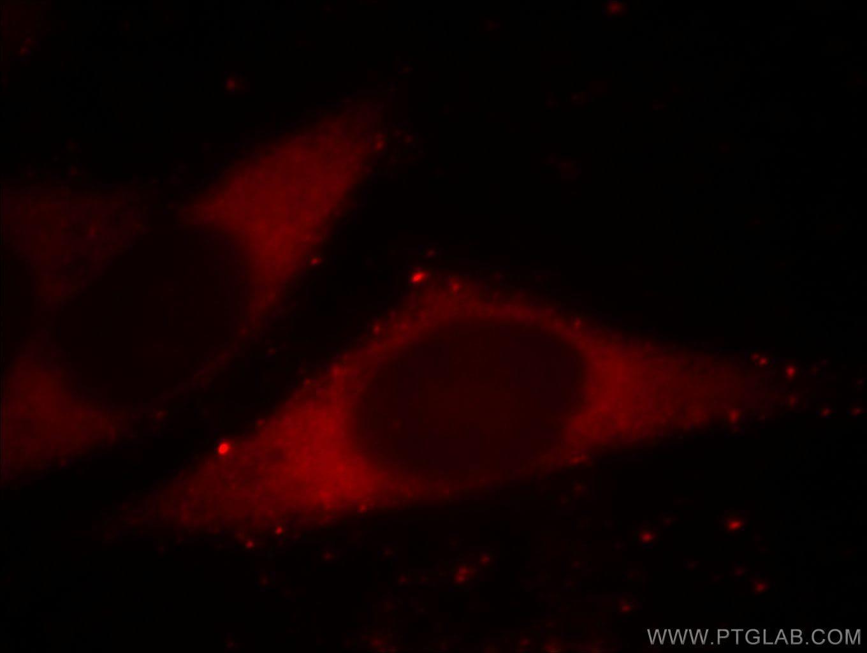 BORIS Antibody in Immunofluorescence (IF)