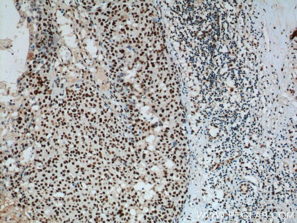B23/NPM1 Antibody in Immunohistochemistry (Paraffin) (IHC (P))