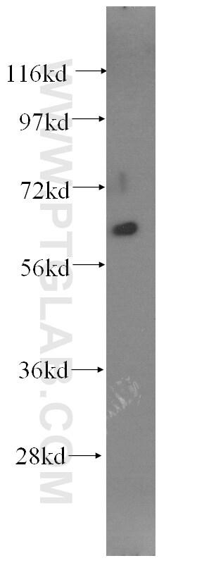 Fibromodulin Antibody in Western Blot (WB)
