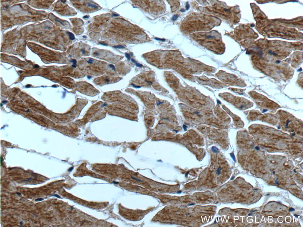 ST2 Antibody in Immunohistochemistry (Paraffin) (IHC (P))