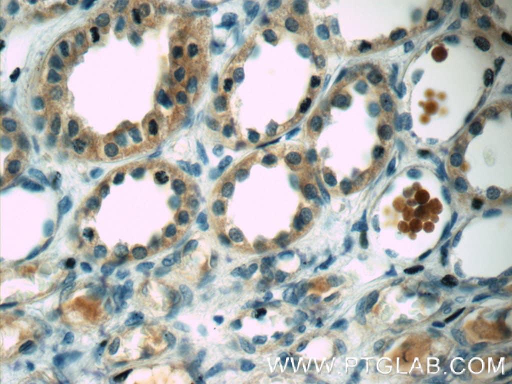 Angiotensinogen Antibody in Immunohistochemistry (Paraffin) (IHC (P))