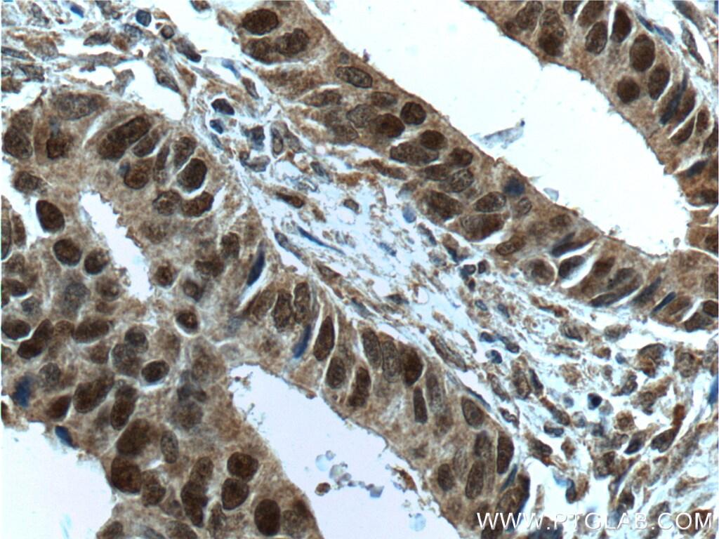 MSH2 Antibody in Immunohistochemistry (Paraffin) (IHC (P))