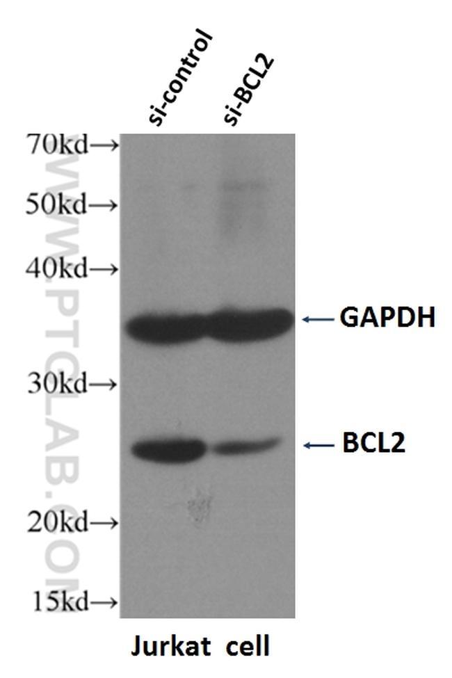 BCL2 Antibody in Western Blot (WB)