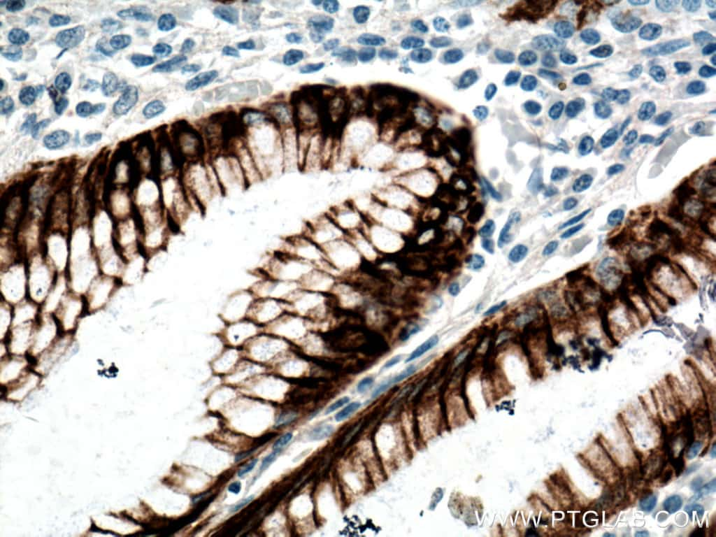 Cytokeratin 20 Antibody in Immunohistochemistry (Paraffin) (IHC (P))