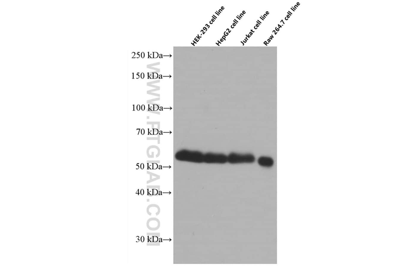 WTAP Antibody in Western Blot (WB)