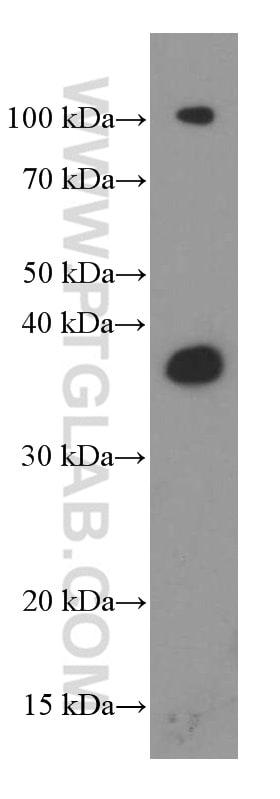 Synaptophysin Antibody in Western Blot (WB)