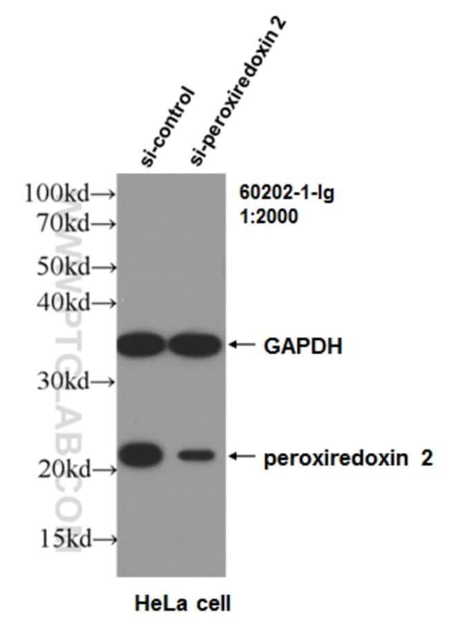 peroxiredoxin 2 Antibody in Western Blot (WB)