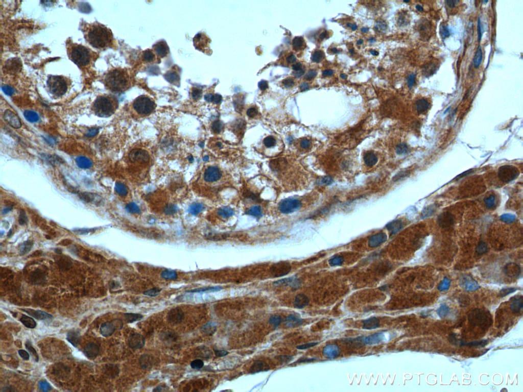 peroxiredoxin 2 Antibody in Immunohistochemistry (Paraffin) (IHC (P))