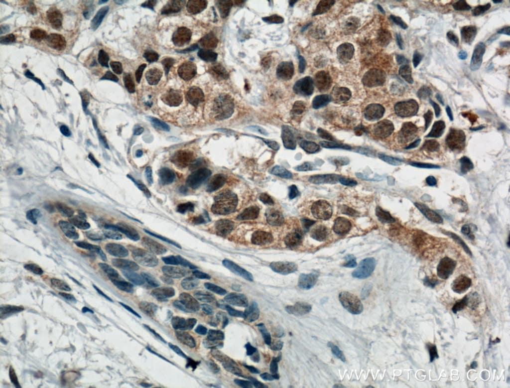AKT Antibody in Immunohistochemistry (Paraffin) (IHC (P))