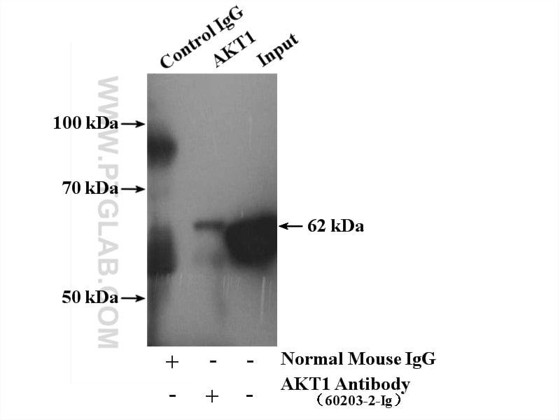 AKT Antibody in Immunoprecipitation (IP)