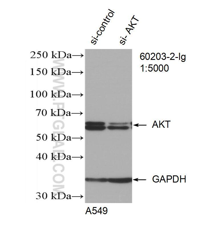 AKT Antibody in Western Blot (WB)