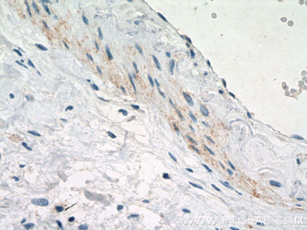 SMMHC Antibody in Immunohistochemistry (Paraffin) (IHC (P))