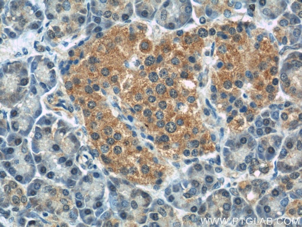 IFT88 Antibody in Immunohistochemistry (Paraffin) (IHC (P))