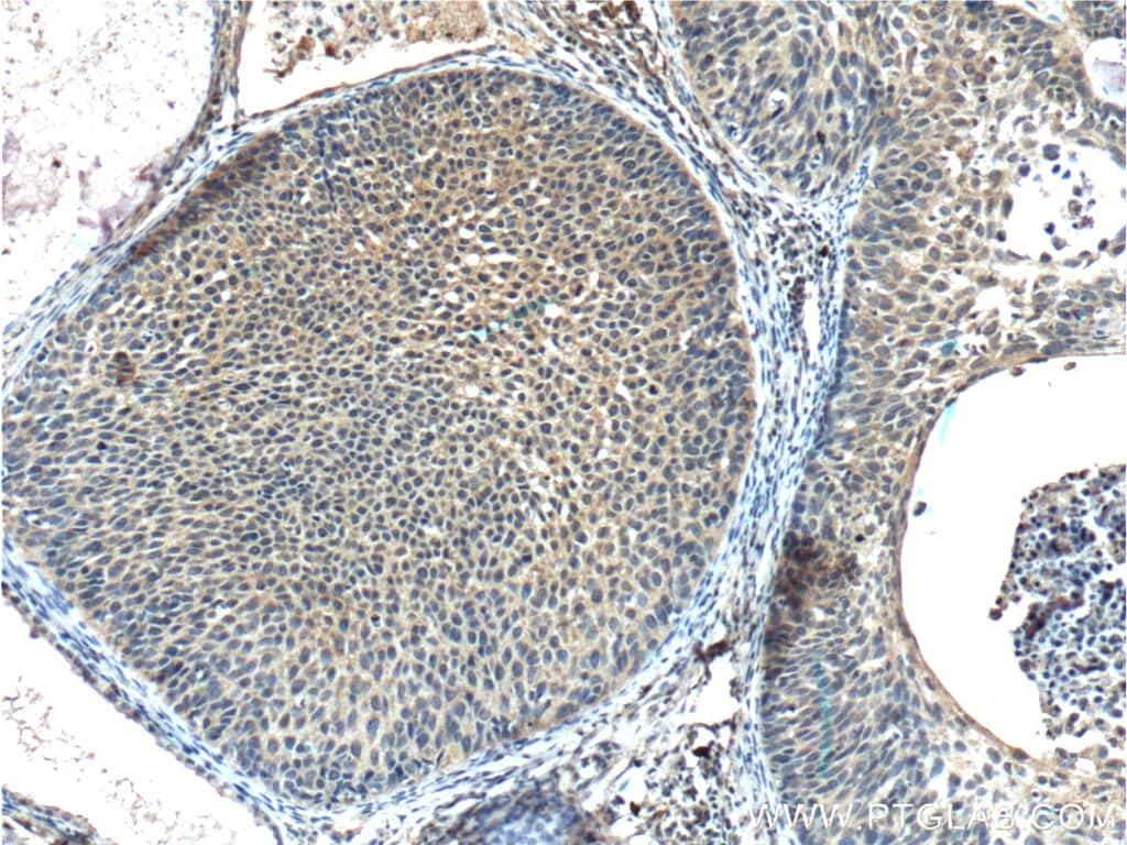 FUT9 Antibody in Immunohistochemistry (Paraffin) (IHC (P))