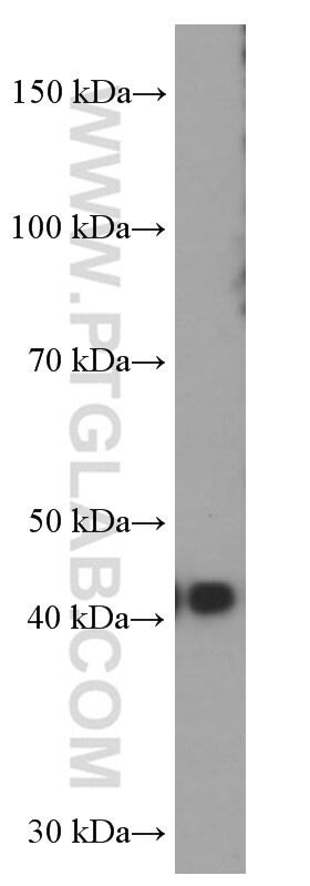 FUT9 Antibody in Western Blot (WB)