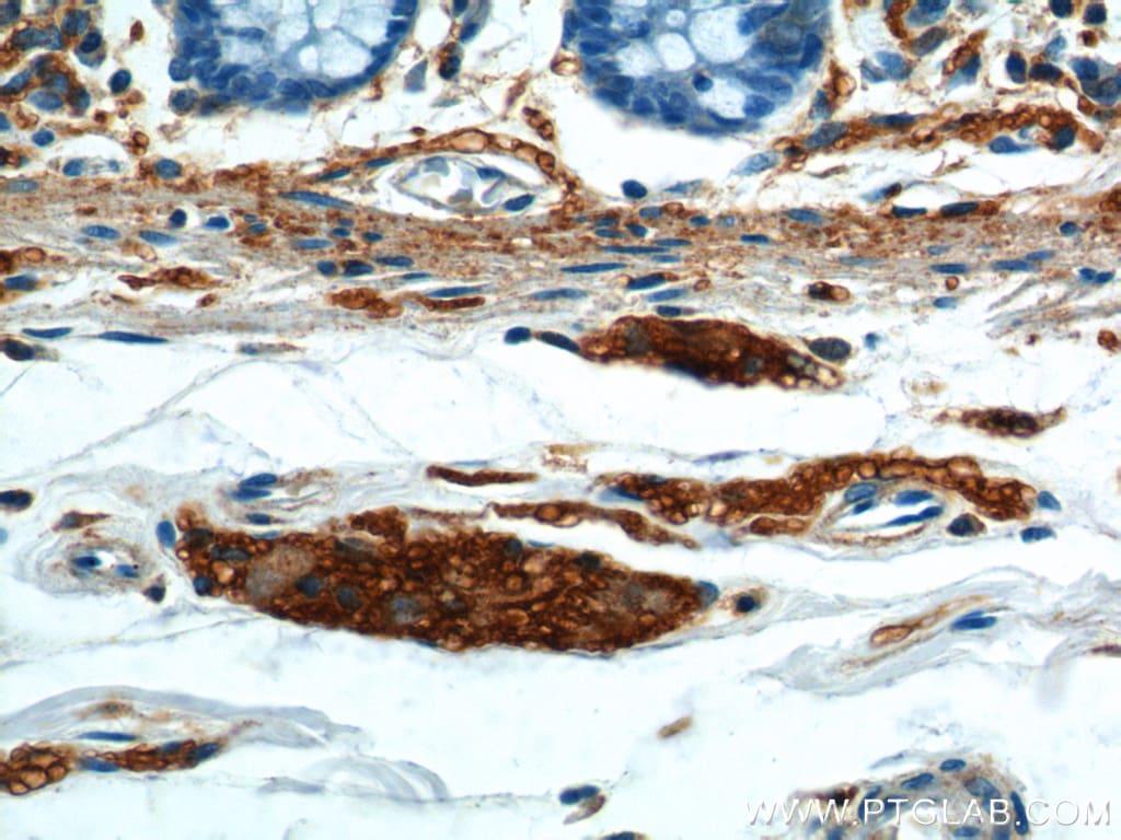 NCAM1/CD56 Antibody in Immunohistochemistry (Paraffin) (IHC (P))