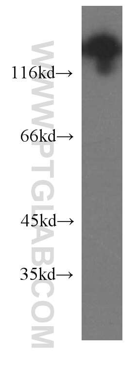 NCAM1/CD56 Antibody in Western Blot (WB)