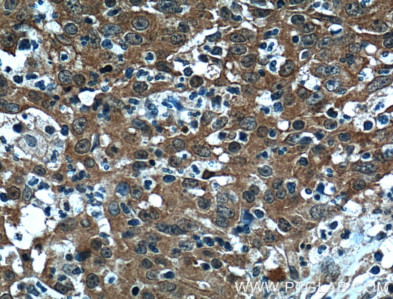 4EBP1 Antibody in Immunohistochemistry (Paraffin) (IHC (P))