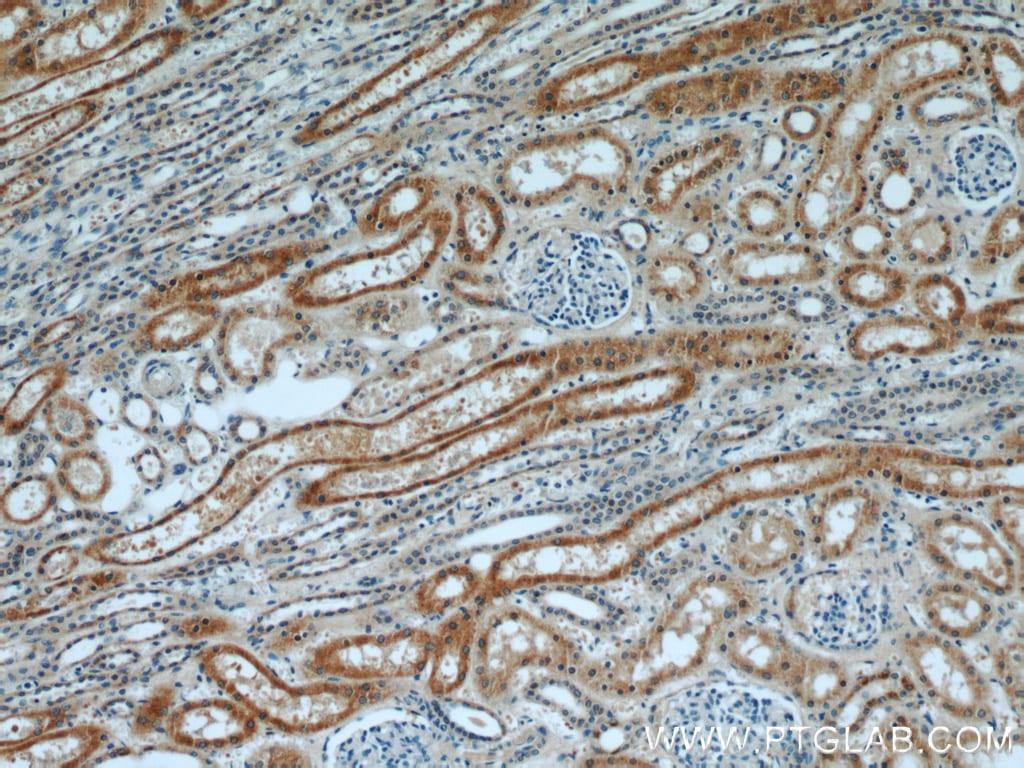 Napsin A Antibody in Immunohistochemistry (Paraffin) (IHC (P))