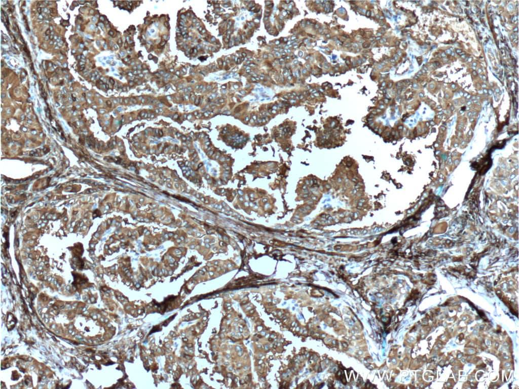 Thyroglobulin Antibody in Immunohistochemistry (Paraffin) (IHC (P))